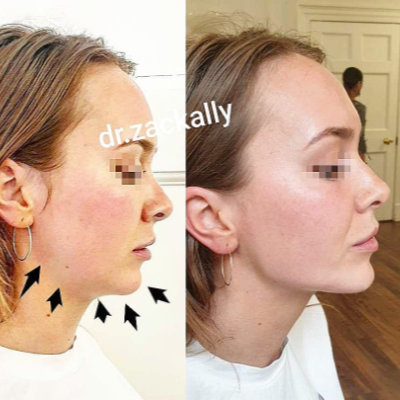 Woman post chin and jawline filler treatment