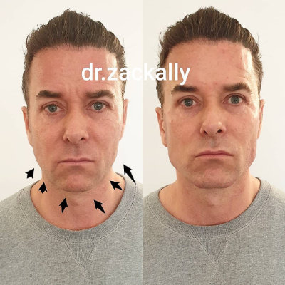 Man before & after chin and jawline treatment