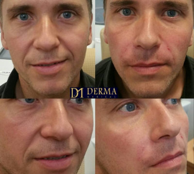 before and after nasolabial filler