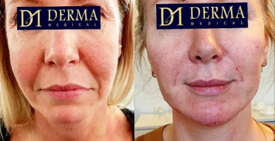 before and after nasolabial line filler